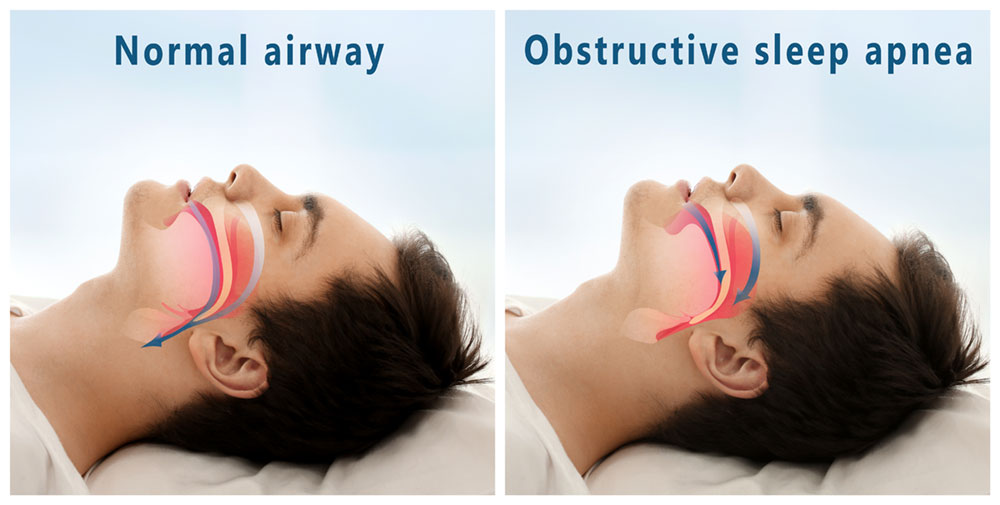 obstructive sleep apnea graphic